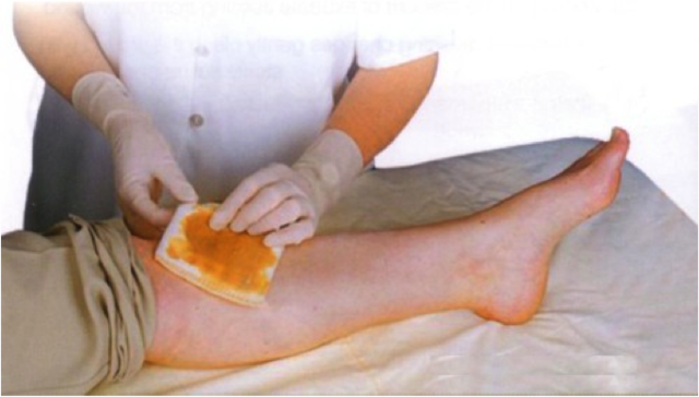 banana and wound healing Banana peel to relieve pain and heal the wound banana is one of the most popular fruit all around the world for its to accelerate the wound healing.