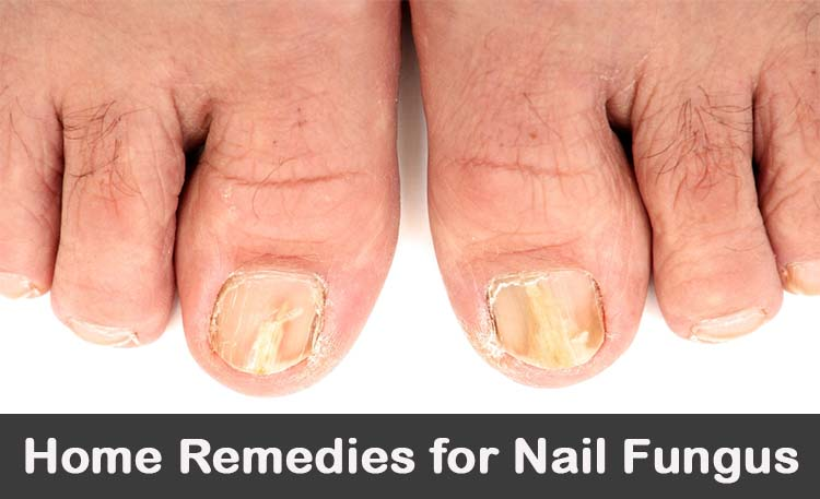 How To Use Manuka Honey For Nail Fungus - Honey Home Remedies For ...