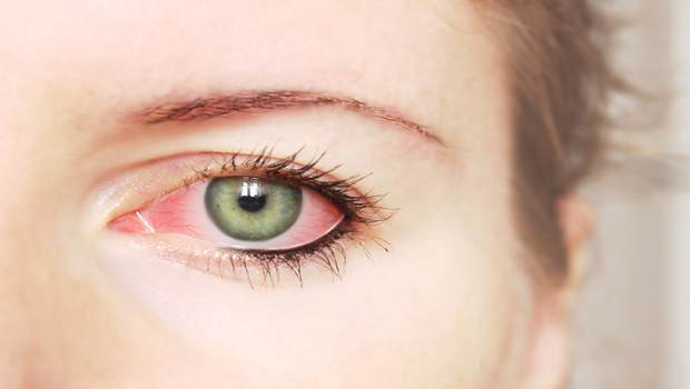 How To Use Manuka Honey For Pink Eye