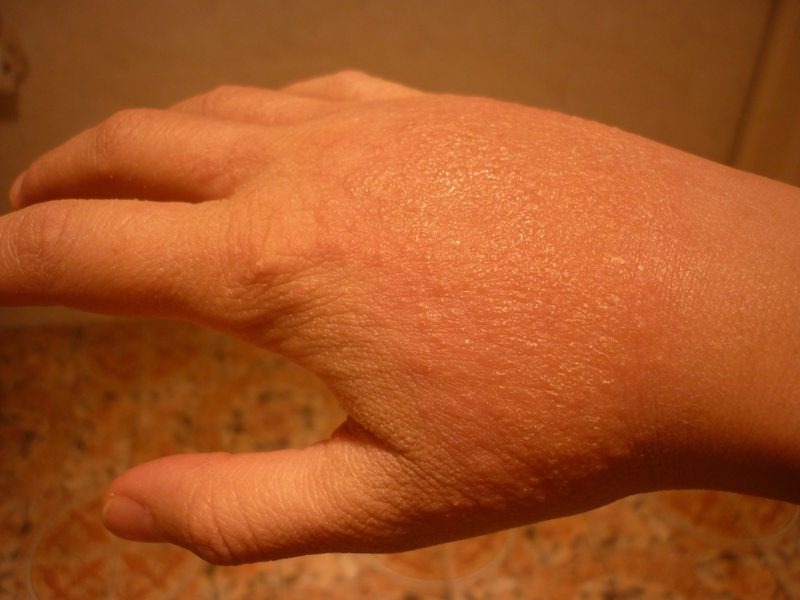 Is Manuka Honey Good for Fungal Infection